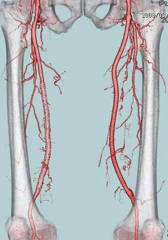 閉塞性動脈硬化症(ASO)と血管内治療について 血管外科 診療科の ...